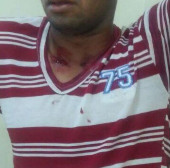 Funcionário baleado em fazenda invadida pelo MST no Pará